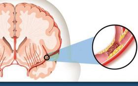 Điều gì sẽ xảy ra nếu bạn gặp phải cơn đột quỵ tái phát? Làm cách nào để xử lý?