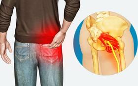 Đau một bên mông là bệnh gì? Cẩn thận với nguy cơ mắc thoát vị đĩa đệm