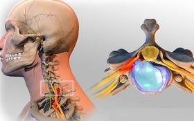 Thoát vị đĩa đệm cột sống cổ không điều trị sớm có thể bị liệt nửa người