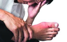 Bệnh gout có nguy hiểm không?
