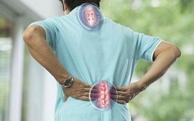 Phân biệt bệnh loãng xương và vôi hóa cột sống