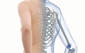 Phân biệt bệnh loãng xương và xương thủy tinh