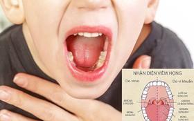 2 hiểu lầm cơ bản của cha mẹ về bệnh viêm họng ở trẻ