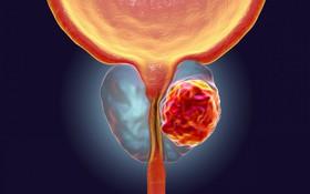 Bệnh ung thư tuyến tiền liệt sống được bao lâu?