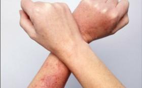 Những sai lầm trong điều trị viêm nang lông khiến bệnh nghiêm trọng hơn