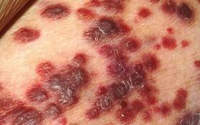 Những biến chứng viêm nang lông thường gặp