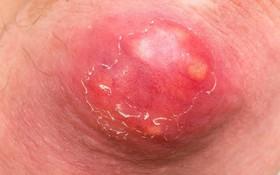 Viêm nang lông biến chứng thành nhọt và cụm nhọt