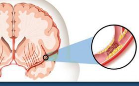 Đây là những điều bạn cần biết về đột quỵ để tránh những cái chết đột ngột