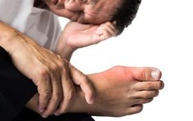 Mức độ nguy hiểm của bệnh gout ở người trẻ