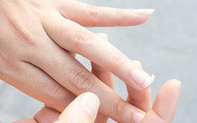Móng tay giòn và dễ gãy: Dấu hiệu thiếu canxi, nguy cơ mắc bệnh loãng xương?