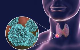 Biện pháp điều trị ung thư tuyến giáp cho từng loại và chi phí điều trị