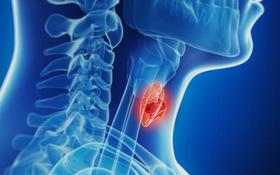 Những điều cần biết về u tuyến giáp lành tính và so sánh với u tuyến giáp ác tính