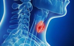 Ai có nguy cơ mắc bệnh ung thư tuyến giáp?