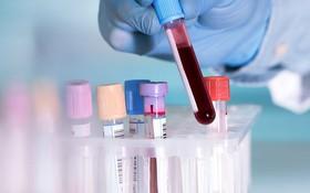 Các xét nghiệm theo dõi sau điều trị ung thư tuyến giáp