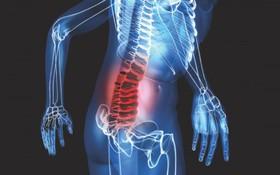 Tìm hiểu về ung thư tuyến giáp di căn: Các vị trí di căn và cách điều trị