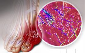 Tìm hiểu về nhóm thuốc giúp tăng bài tiết acid uric và tiêu hủy acid uric được FDA công nhận (phần 2)