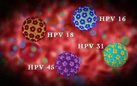 HPV - Virus gây ung thư amidan cần đề phòng