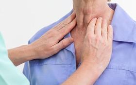 Sưng hạch cổ - cẩn thận vì có thể là ung thư amidan giai đoạn muộn