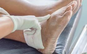 Hướng dẫn nhận biết triệu chứng bệnh gout phổ biến