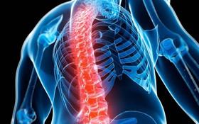 Bạn sẽ có nguy cơ cao mắc bệnh loãng xương nếu như có 1 trong 6 căn bệnh này