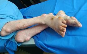 Làm thế nào để phòng tránh những biến chứng của bệnh gout?