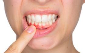 Sức khỏe răng miệng suy giảm có thể là dấu hiệu loãng xương ở người trẻ