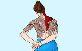 Teo cơ, tàn phế vì chủ quan với bệnh đau mỏi vai gáy