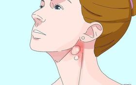 3 cách giúp bạn phân biệt ung thư tuyến giáp và viêm họng hạt