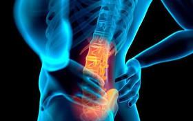 Điều trị đau lưng mãn tính như thế nào?