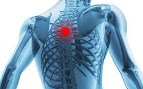 Tìm hiểu về cơn đau lưng trên