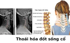 7 dấu hiệu thoái hóa cột sống cổ từ nhẹ đến nặng