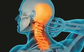 Những điều cần làm để giảm đau đớn do thoái hóa cột sống cổ