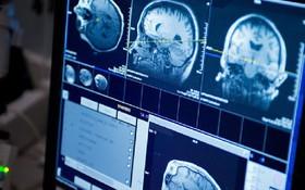 Một số dấu hiệu ung thư thanh quản di căn não