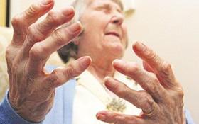 Các phương pháp điều trị bệnh viêm khớp dạng thấp