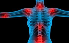Những biến chứng phổi nguy hiểm do viêm khớp dạng thấp gây ra