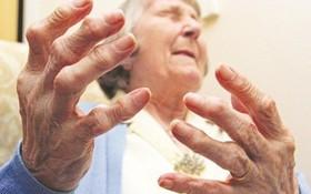 Các biến chứng của viêm khớp dạng thấp cần đề phòng từ sớm!