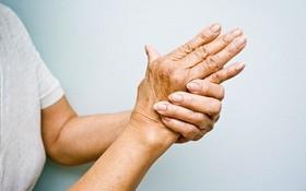 Những hiểu lầm phổ biến về bệnh lý viêm khớp dạng thấp