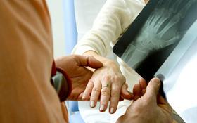 Triệu chứng bệnh viêm khớp dạng thấp khởi phát ở người cao tuổi