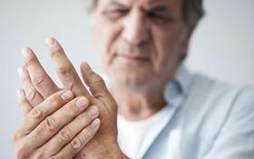 Mối liên hệ giữa bệnh lý viêm khớp dạng thấp với tác nhân thời tiết