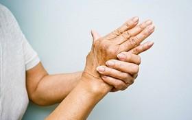 Nhận biết dấu hiệu của bệnh viêm khớp dạng thấp cấp tính