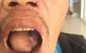 Bị ung thư lưỡi có phải do di truyền?