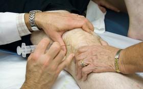 Tìm hiểu về phương pháp tiêm bổ sung dịch nhờn khớp