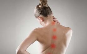 Tìm hiểu về các phương pháp chẩn đoán cong vẹo cột sống
