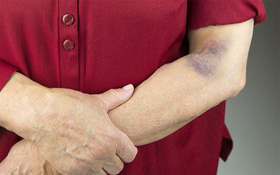 Nhận biết dấu hiệu bệnh ung thư máu theo giai đoạn