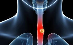 Theo dõi bệnh nhân sau điều trị ung thư thực quản