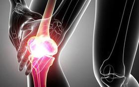 Bệnh ung thư xương có nguy hiểm không? Sống được bao lâu?