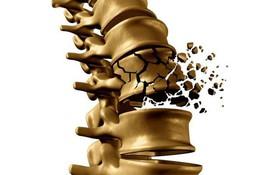 Những sai lầm thường gặp khi bổ sung canxi cho xương cần tránh