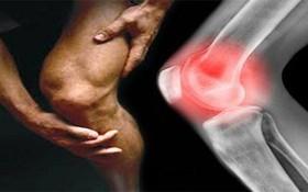 Phân biệt bệnh ung thư xương và paget xương