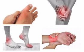 Làm thế nào để giảm đau viêm khớp dạng thấp nhanh, hiệu quả?