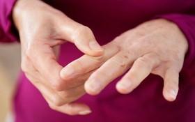 6 bài tập tay dành cho người bị viêm khớp dạng thấp